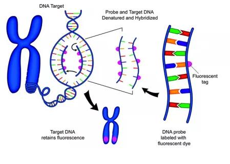 宏远生物 尿路上皮癌染色体异常检测试剂盒(联合探针锚定聚合测序法)(2021年第9号)